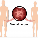Herpes Simplex Virus Affects Silently into The Human Body
